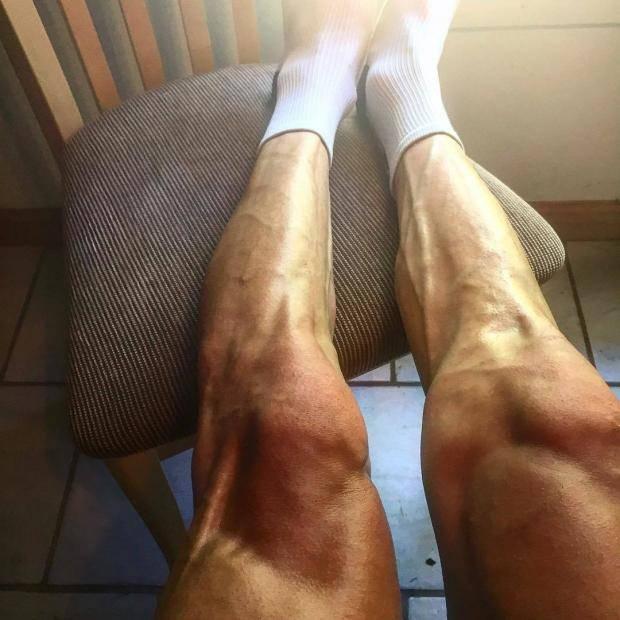 Почему при беге сводит ноги. Причины, профилактика, лайфхаки