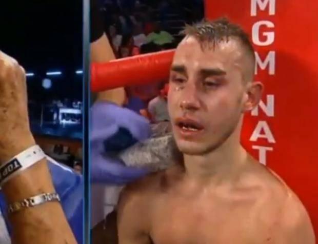 «Ему удалили часть черепа». Российский боксер Максим Дадашев после боя в критическом состоянии