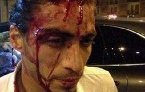 Опубликованы фото с места аварии Касереса, который пьяным въехал в остановку
