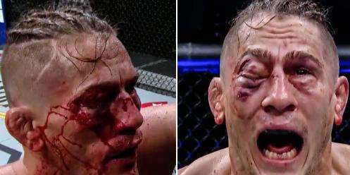 У бойца UFC «закрылся» глаз из-за страшной гематомы (видео)